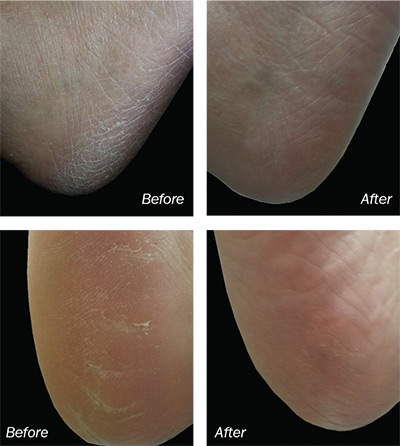 treat embarrassing foot problems before and after cracked feet