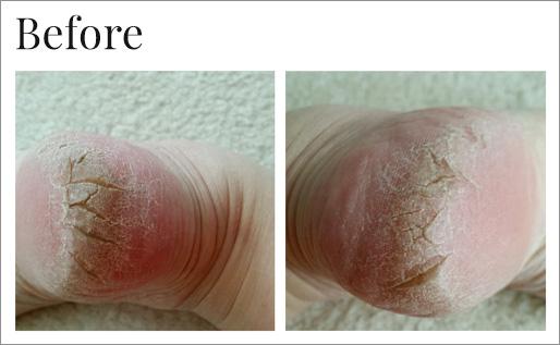 Before using Dr. Canuso foot repair serum