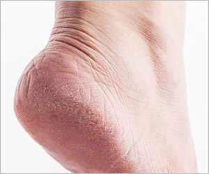 Dry cracked foot
